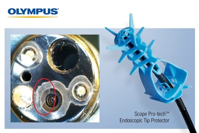 Endoscope Distal Tip Damage (Damage Circled on Left) Can Be Costly to Facilities in Terms of Repairs, Strain on Staff and Risk of Infection, Making the Scope Pro-tech™ Endoscopic Tip Protector from Olympus a Smart Addition to an Infection Prevention Strategy